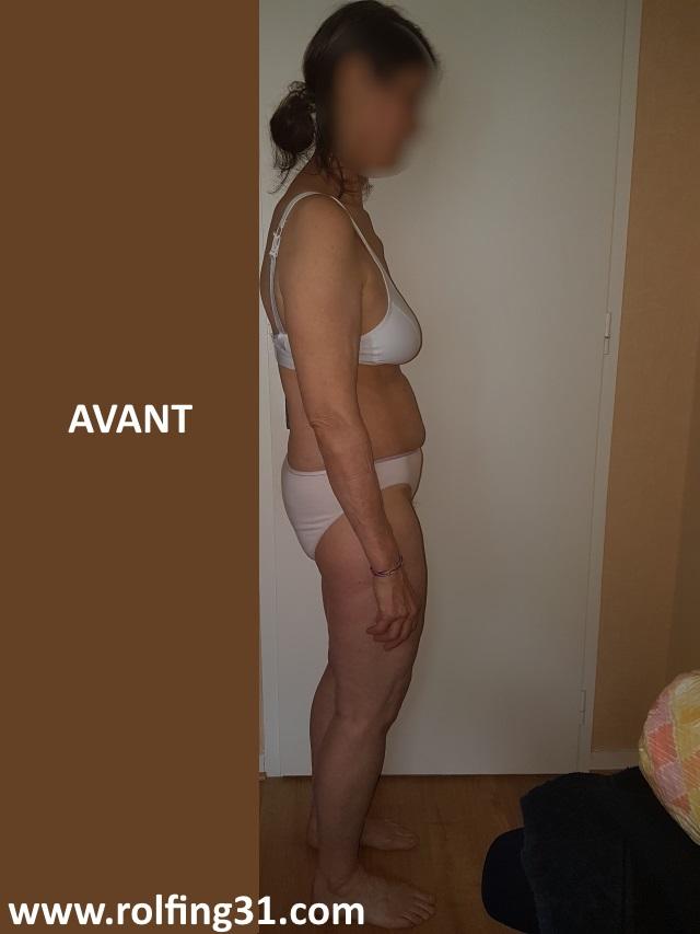 Avant-1