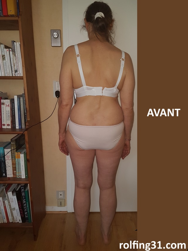 Avant fasciathérapie, vue de dos